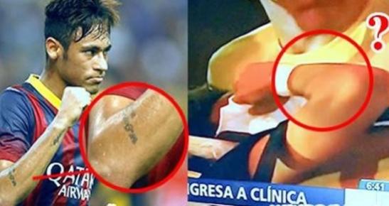 o braço sem tatuagem é claro indício que ali na maca estava um dublê.  Neymar fingiu lesão depois de ter vendido a Copa.